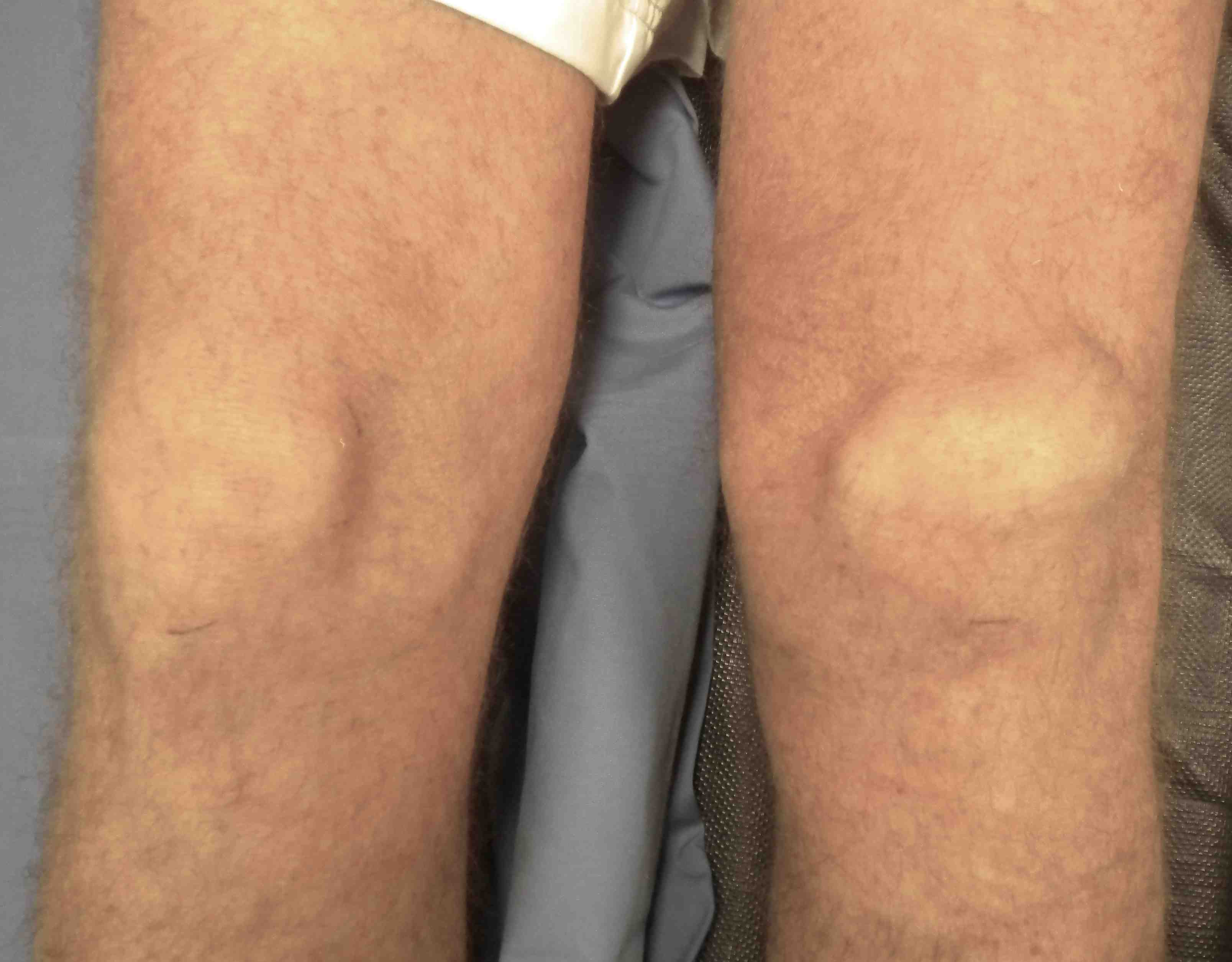 Quadriceps Tendon Tear - No Fault Doctor in Forest Hills, NY