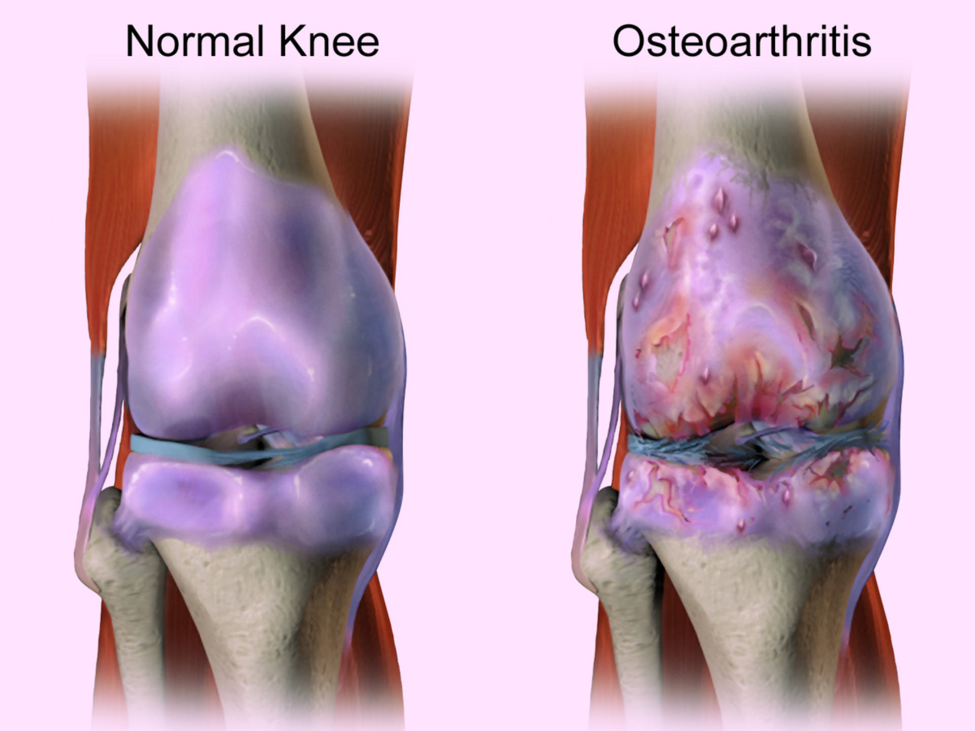 Knee Osteoarthritis (OA) - No Fault Doctor in Forest Hills, NY