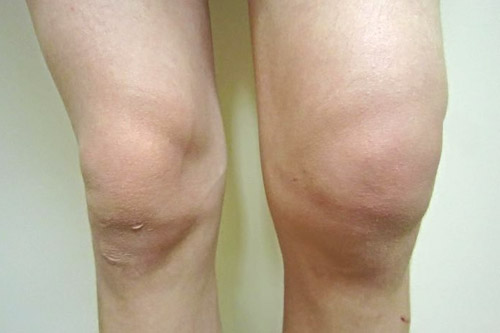Knee Bursitis   Knee Bursitis Treatment - No Fault Doctor in Forest Hills