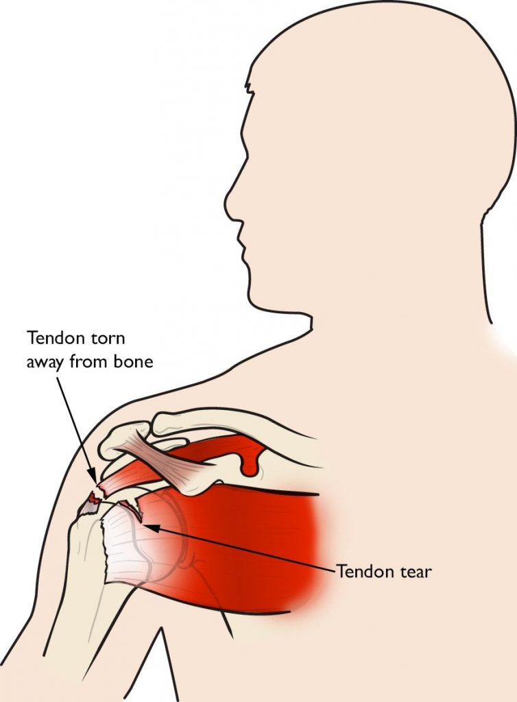 Rotator Cuff Injuries - No Fault Doctor in Forest Hills, Queens, NY